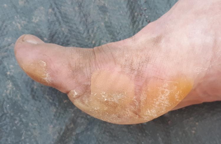 6 jours de france - blisters01