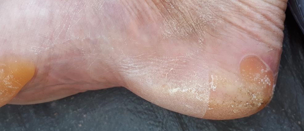 6 jours de france - blisters02